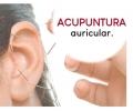 acupuntura-auricular_galeria